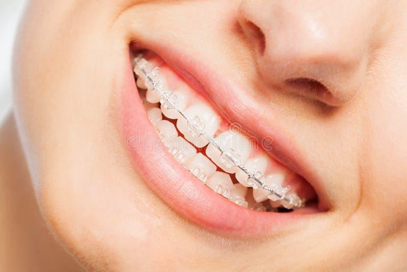 Gelukkige glimlach van jonge vrouw met tandsteunen royalty-vrije stock foto's