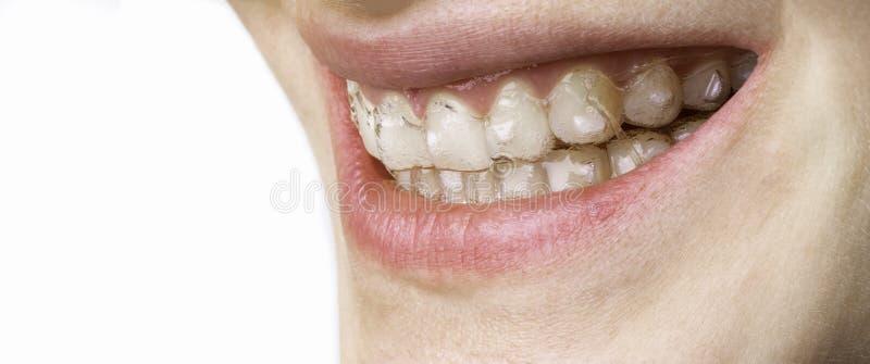Gelukkige glimlach van jonge vrouw met tandsteunenaligner royalty-vrije stock afbeelding