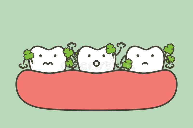 Gemüse gehaftet in den Zähnen, in der Ursache des Zerfallzahnes und im Mundgeruch vektor abbildung