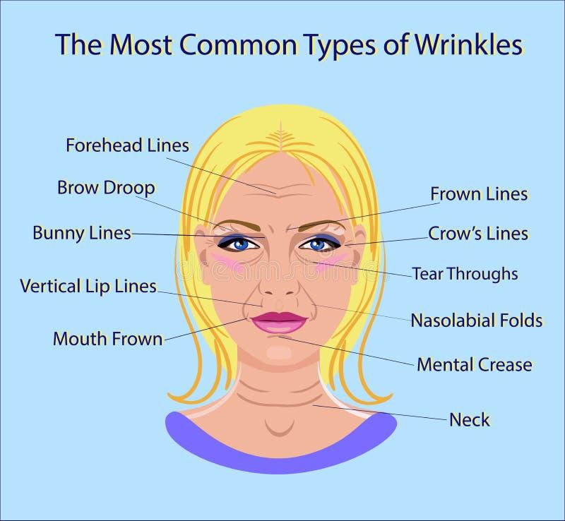 Gemensamma typer av ansikts- skrynklor Kosmetisk kirurgi isolerad ansikts- behandling för kvinna royaltyfri illustrationer
