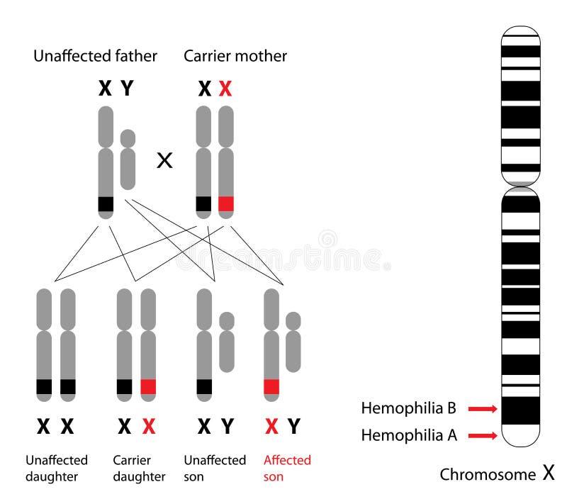 Genética da hemofilia ilustração stock