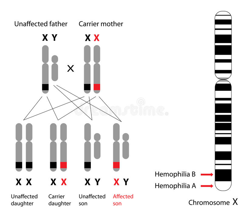 Genética de la hemofilia stock de ilustración