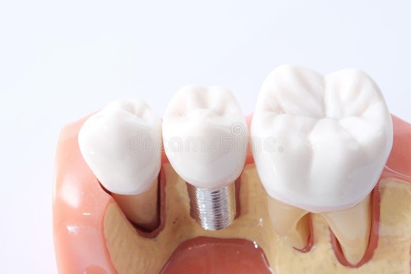 Generisch tandtandenmodel stock afbeeldingen