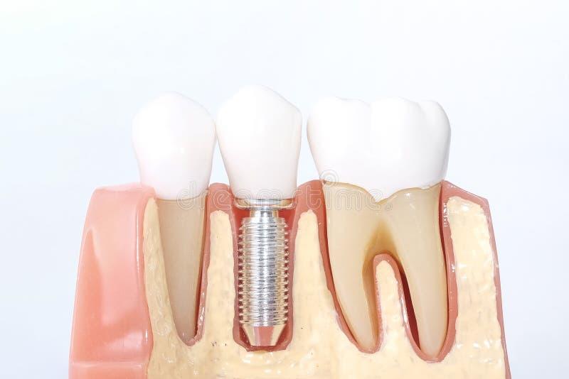 Generisk tand- tandmodell arkivfoto