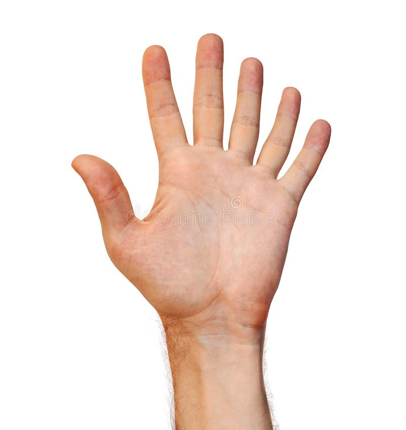 Genetic mutation concept of a six finger human hand due to an extra appendage. Science and genetics concept of a hand mutated with an extra finger, isolated on a stock image
