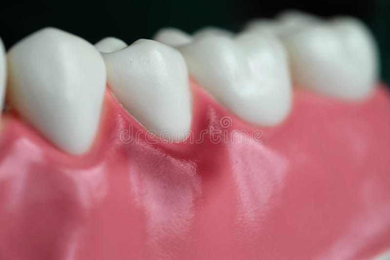 Gengivite e modelo dental fotografia de stock royalty free