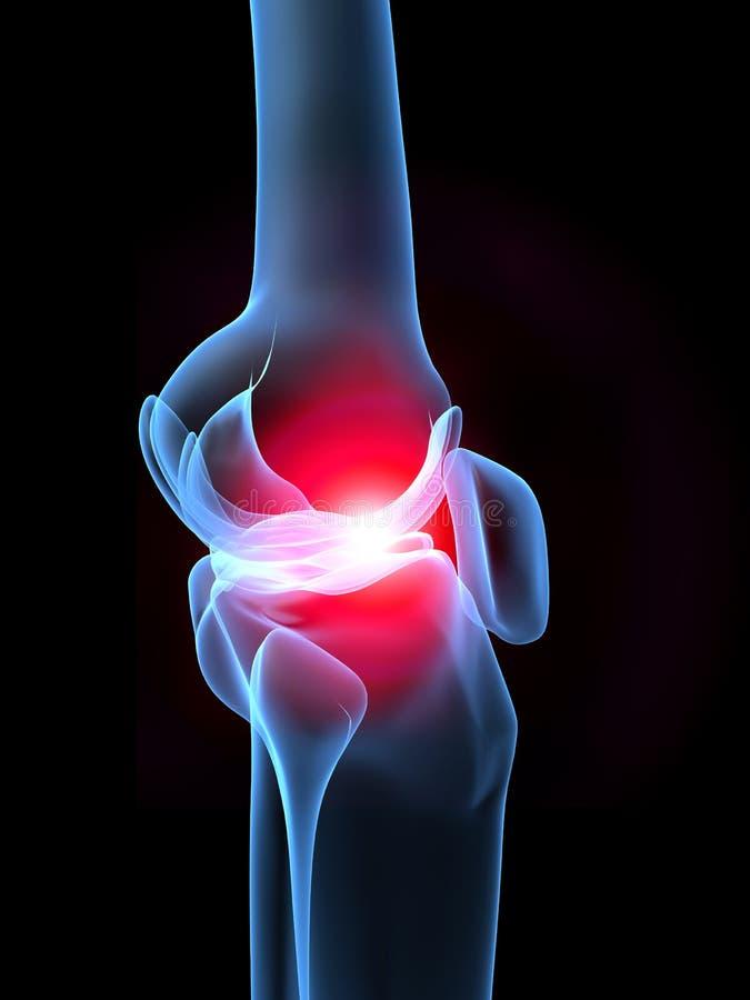 Genou de rayon X avec douleur illustration libre de droits