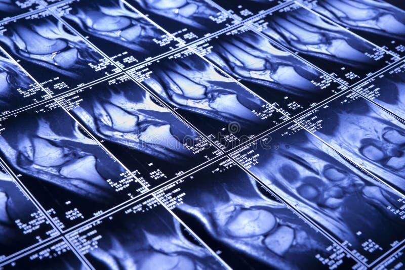 Genou MRI image libre de droits