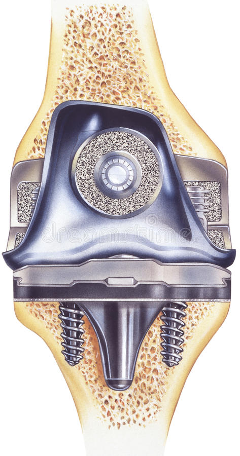 Genou - remplacement total - représentation de la vue coupée de l'implant images stock