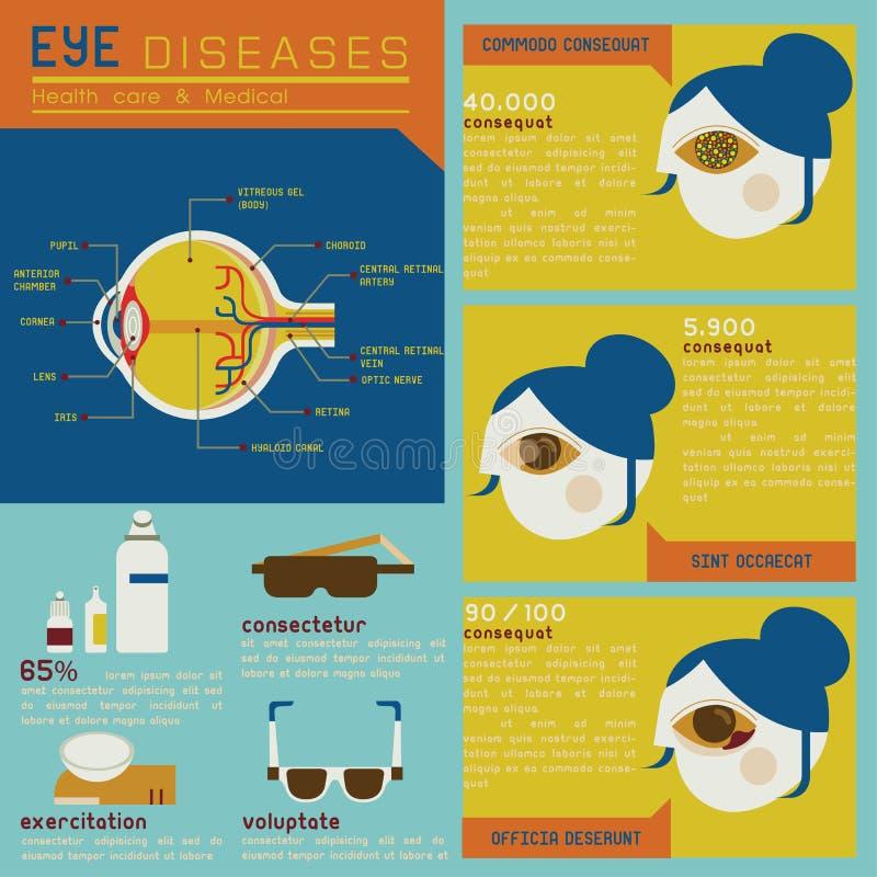 Geplaatste oogziekten stock illustratie