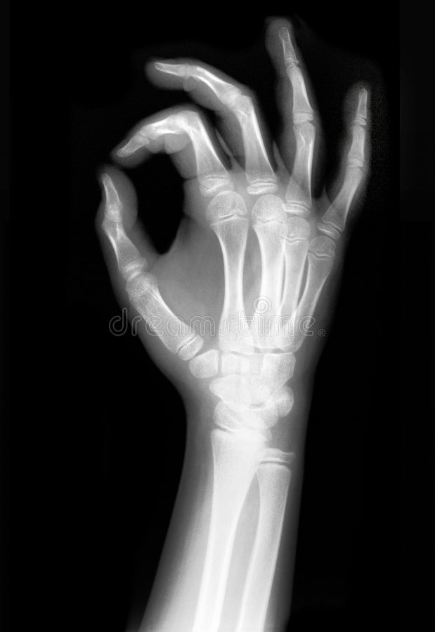 Geröntgte Hand stockfotografie