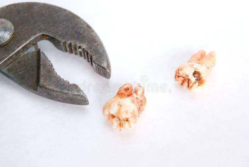 Gerade extrahierte Zähne (p0470) stockbilder