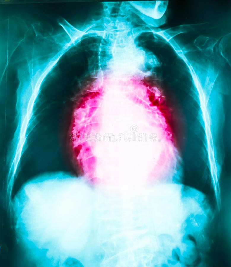 GERD. Is disease from acid in stomach royalty free stock image