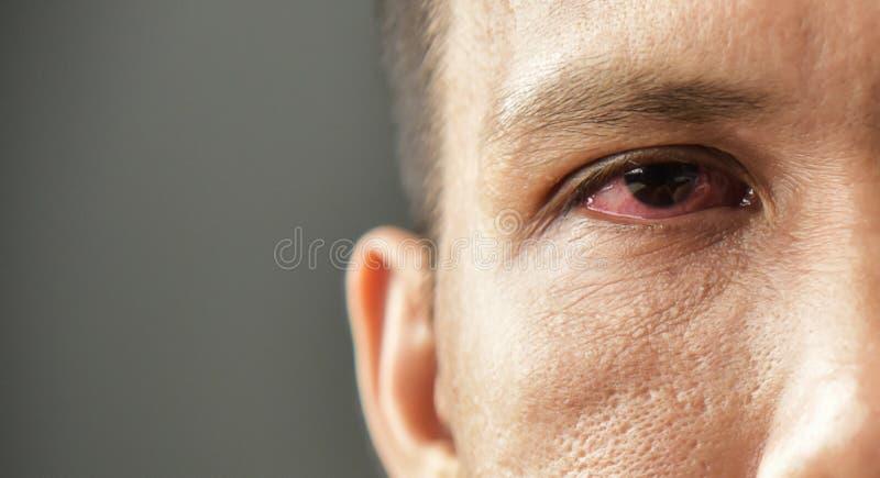 Gereiztes rotes blutunterlaufenes männliches Auge stockbild
