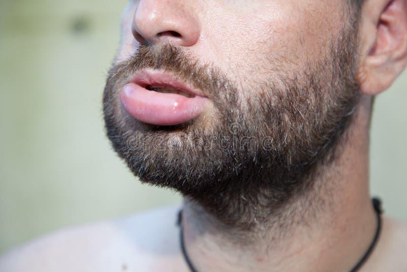 Geschwollene Lippe lizenzfreie stockfotografie