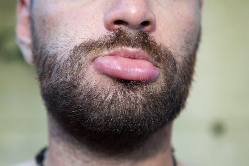 Geschwollene Lippe stockfoto