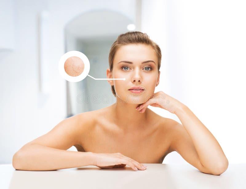 Gesicht der Frau mit trockener Haut lizenzfreie stockbilder