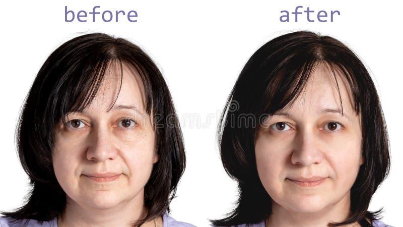 Gesicht einer reifen Frau mit dem dunklen Haar vor und nach kosmetischen verjüngenden Verfahren, lokalisiert auf weißem Hintergru stockfotos