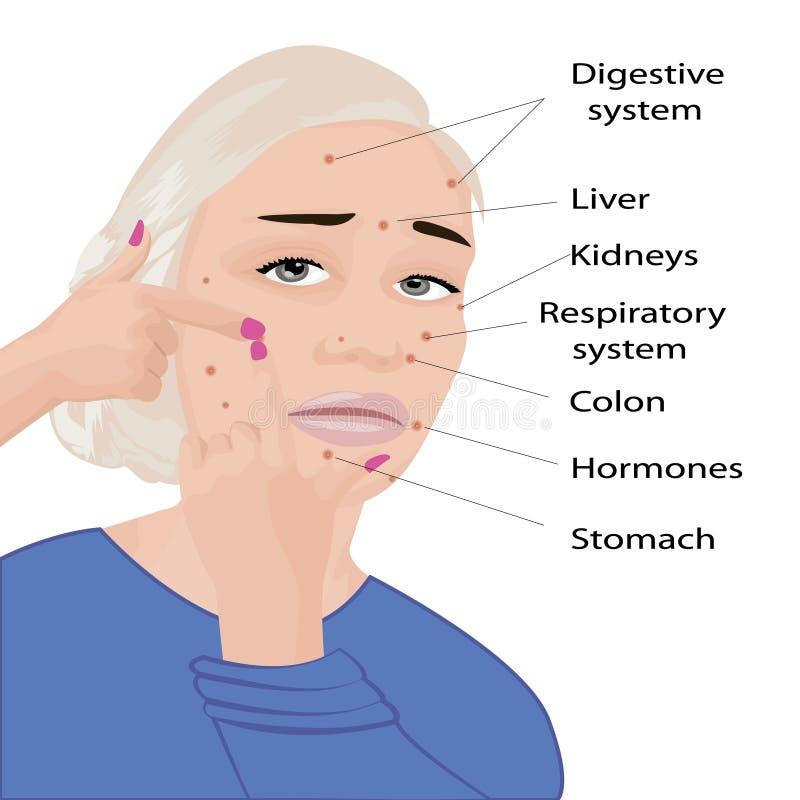 Gesichtsdiagramm Was Ihre Akne, die Ihnen Informationgraphik sagt lizenzfreie abbildung