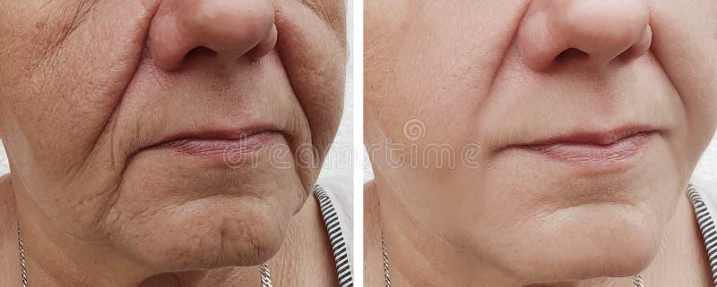 Gesichtsfalten der älteren Frau vor und nach Korrekturverfahren lizenzfreie stockfotografie