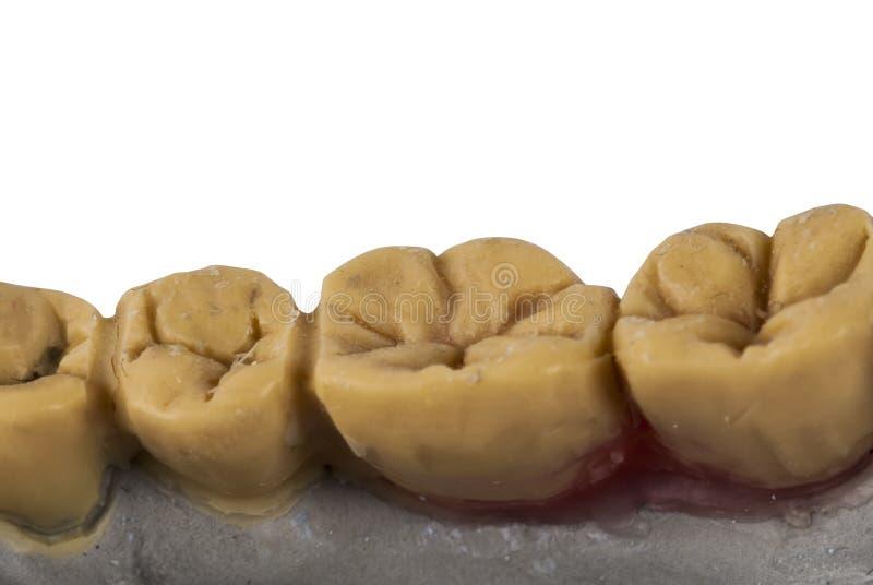 Gesso dei denti fotografia stock