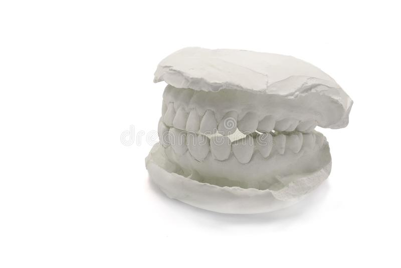 Gesso di modello dentario su fondo bianco, isolato Mandibola del modello del gesso con le progettazioni dentarie artificiali con  immagine stock