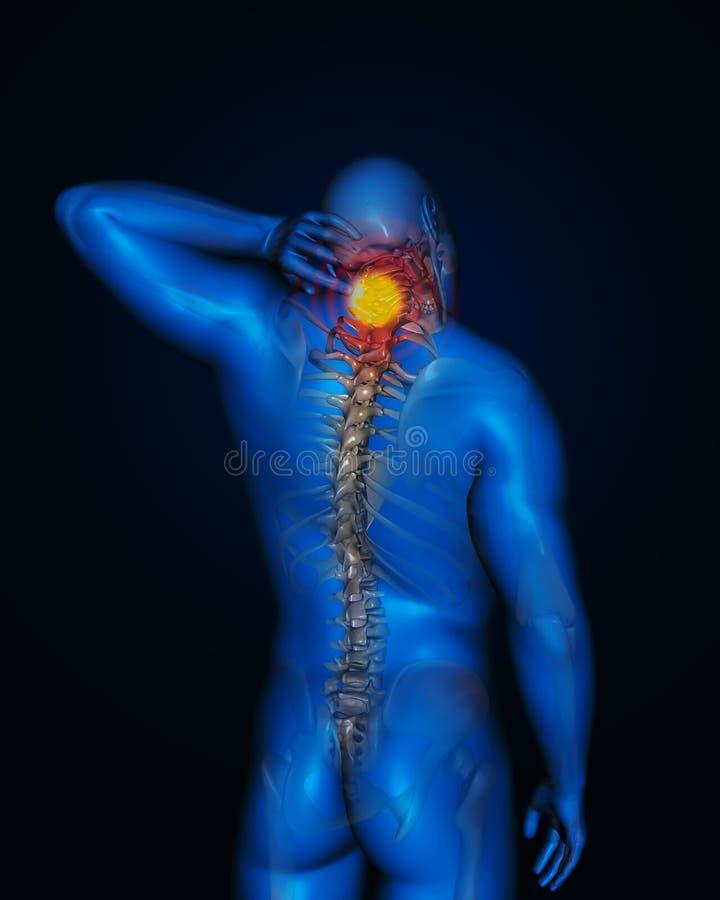 Gestão da dor de pescoço ilustração stock