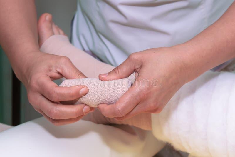 Gestione dei linfonodi: Agitare la gamba utilizzando bende multistrato per controllare il linfonedema Parte della terapia deconge fotografia stock libera da diritti