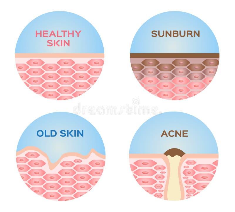 Gesunde Haut, Sonnenbrand, alte Haut und Satz der Akne 4 stock abbildung