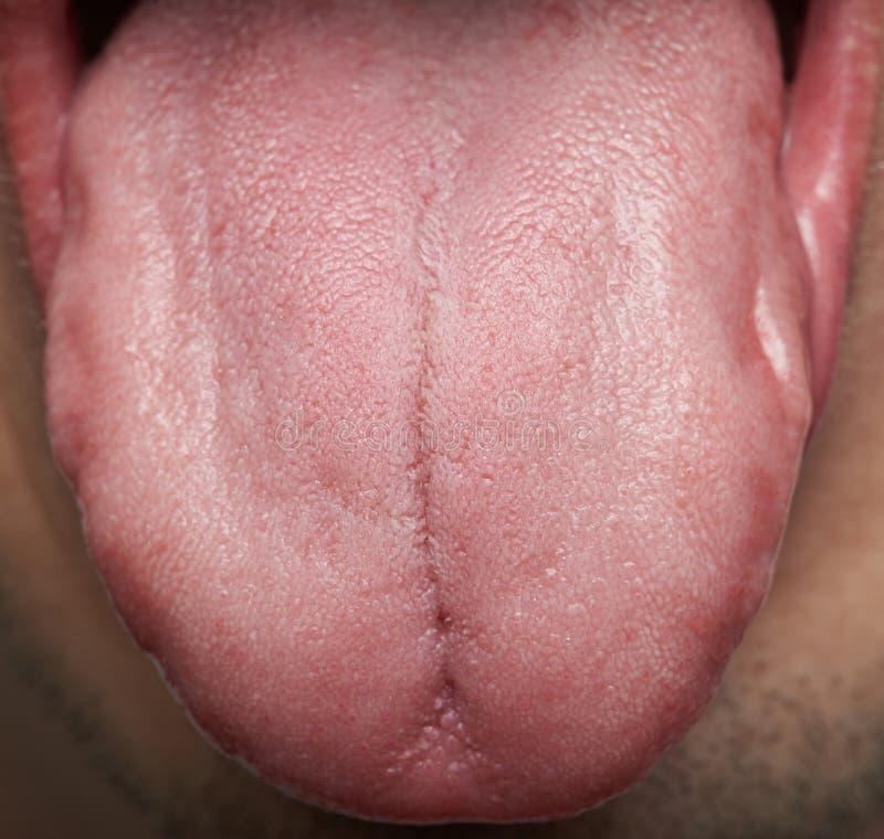 Erfreut Die Anatomie Der Zunge In Der Backe Bilder - Anatomie Von ...