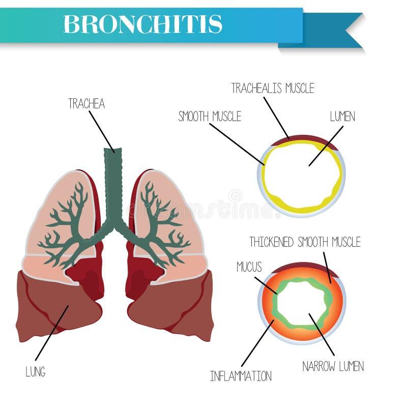 Gesunder und entflammter Bronchus Chronische Bronchitis vektor abbildung