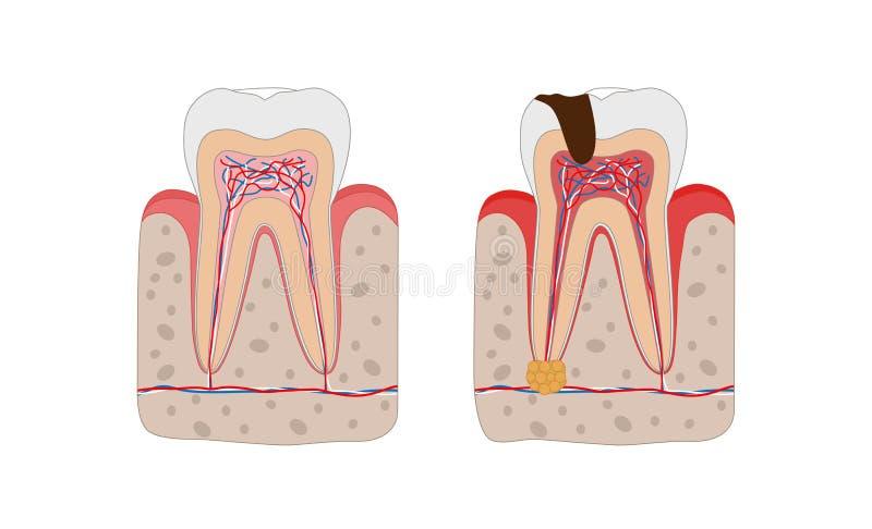 Gesunder Zahn und ungesunder Zahn mit dem Zahnverfall und infographic Elementen des zahnmedizinischen Abszesses lokalisiert auf w vektor abbildung