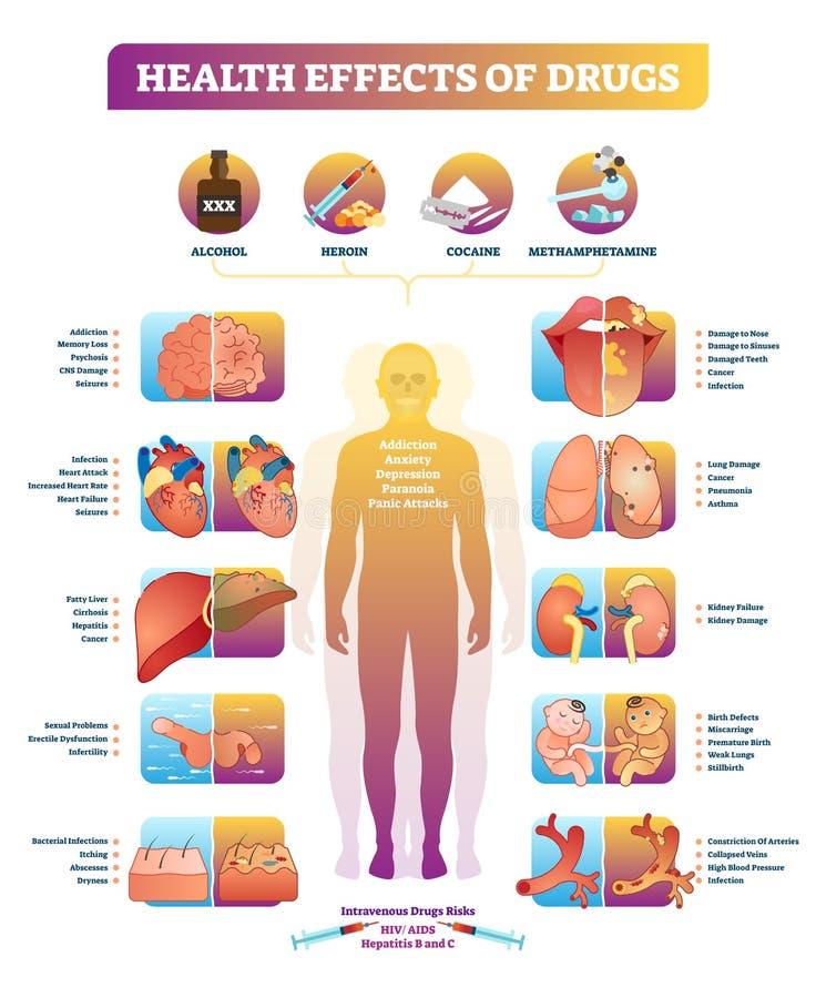 Gesundheitliche Auswirkungen des Vektor-Illustrationsdiagramms der illegalen Drogen Krankheitssatz stock abbildung