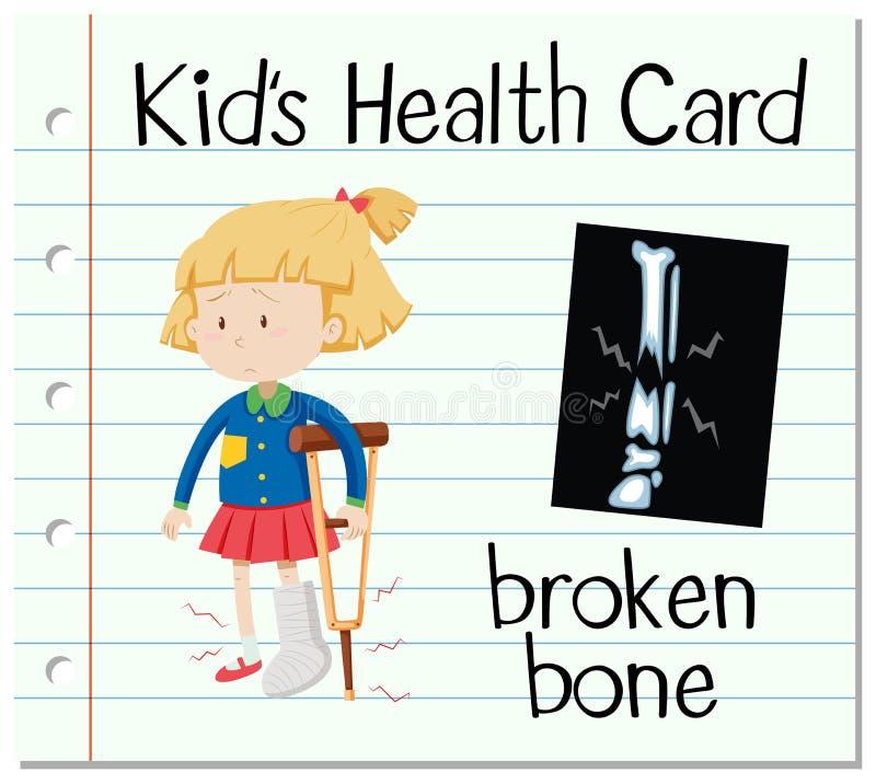 Gesundheitskarte mit dem gebrochenen Knochen vektor abbildung