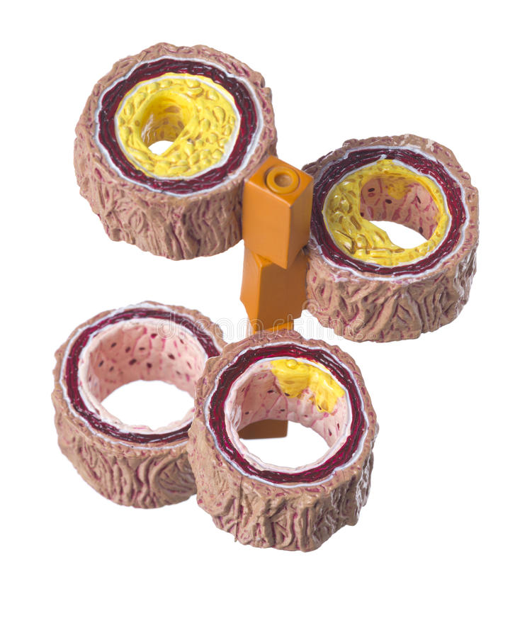 Getrennter Querschnitt der menschlichen Arterie mit Störungen lizenzfreies stockfoto