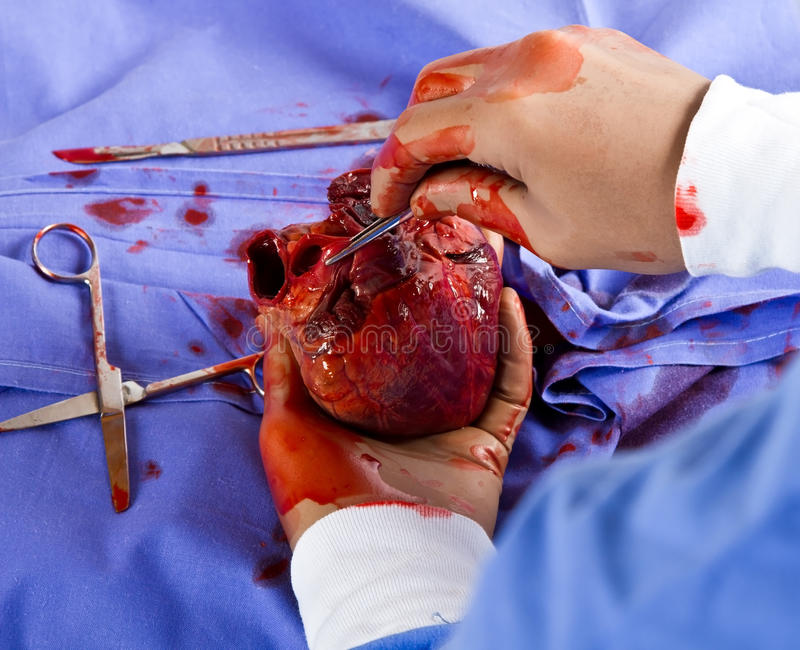 Gevoelige hartchirurgie stock foto's