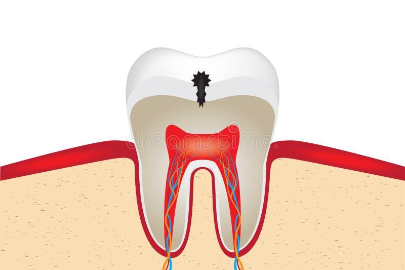 Gewas van tand stock illustratie