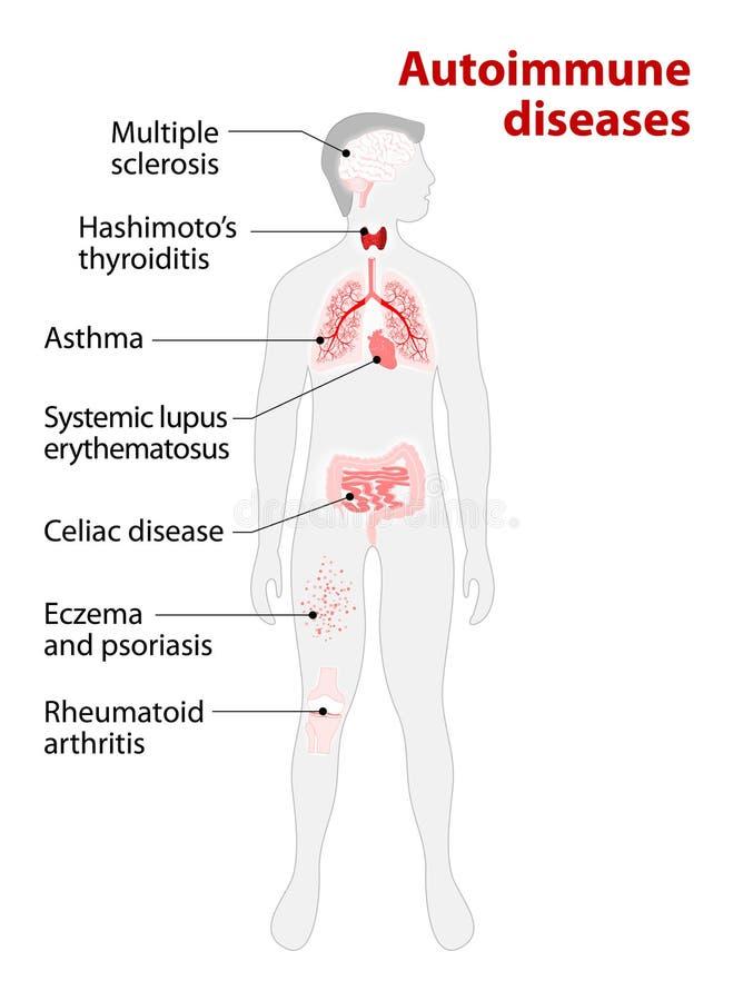 Gewebe Des Menschlichen Körpers Beeinflußt Durch Autoimmunen Angriff ...