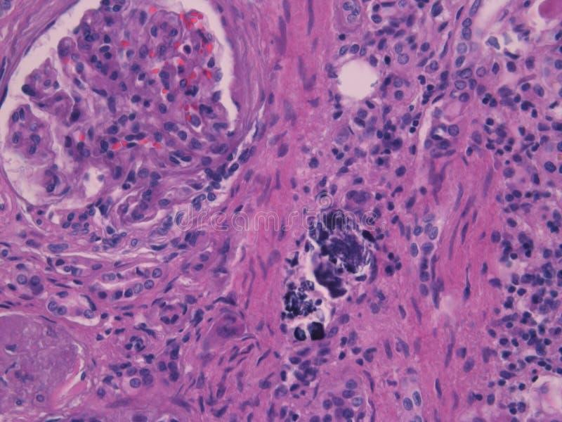 Gewebelehre des anormalen Gewebes (Kalzium) stockbilder