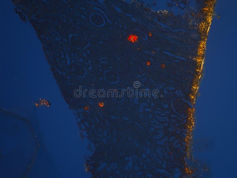 Gewebelehre des anormalen Gewebes (Kalzium) unter Verwendung der Polarisation stockfoto