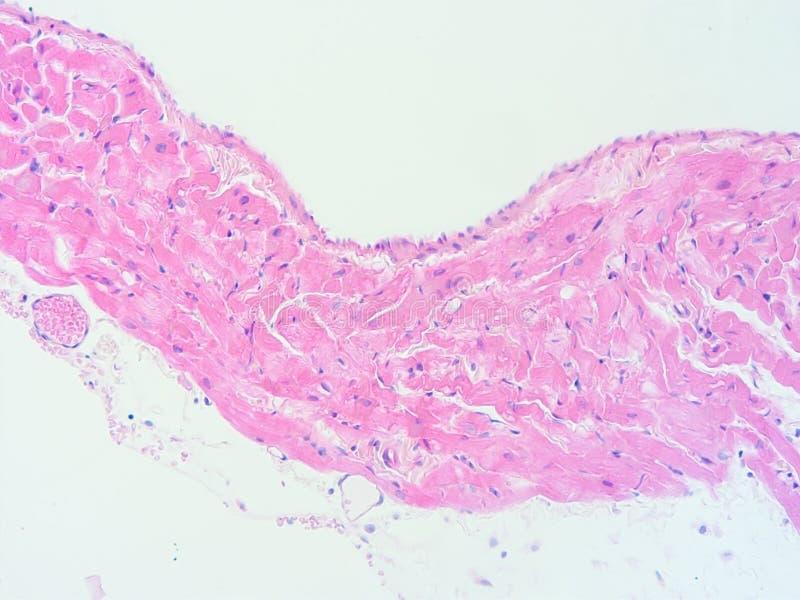 Gewebelehre Des Menschlichen Herzmuskelgewebes Stockbild - Bild von ...