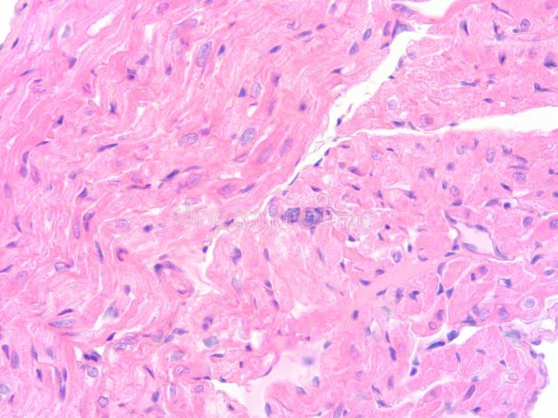 Ungewöhnlich Herzmuskelgewebe Fotos - Menschliche Anatomie Bilder ...