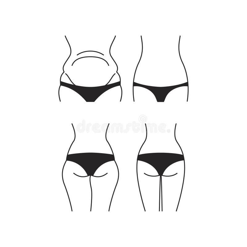 Gewichtsverlustkonzeptrückseite und Vorderansicht - schwarze Unterwäsche - lokalisiert auf weißem Hintergrund lizenzfreie abbildung