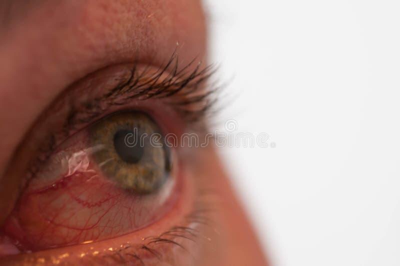 Gewond menselijk groen oog dicht omhoog macroschot royalty-vrije stock foto