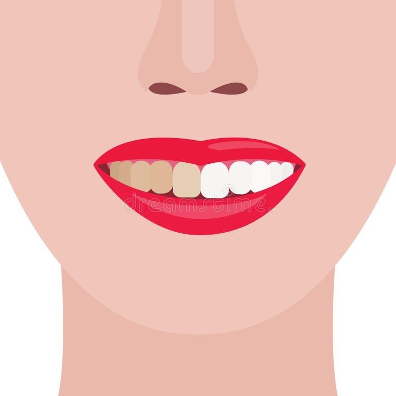 gezicht girl Glimlach met vuile en schone tanden Vector illustratie stock afbeeldingen