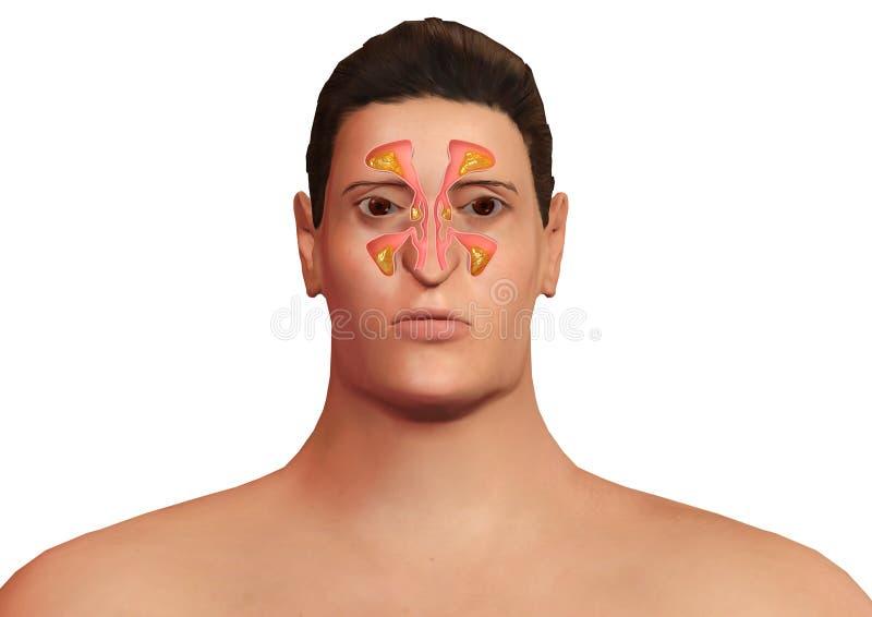 Gezicht van de mens met neussinussen die met sinusitis worden versterkt Allergisch sinusitis en lichaamsonbehagen royalty-vrije illustratie