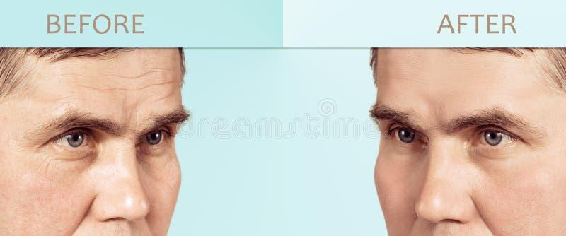 Gezicht van een rijpe mens before and after schoonheidsmiddel die procedures, met exemplaarruimte verjongen in het centrum royalty-vrije stock fotografie