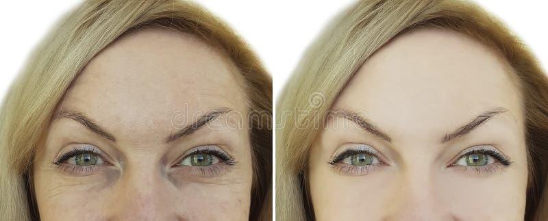 Gezicht van vrouwen` s rimpel before and after e ja royalty-vrije stock afbeelding