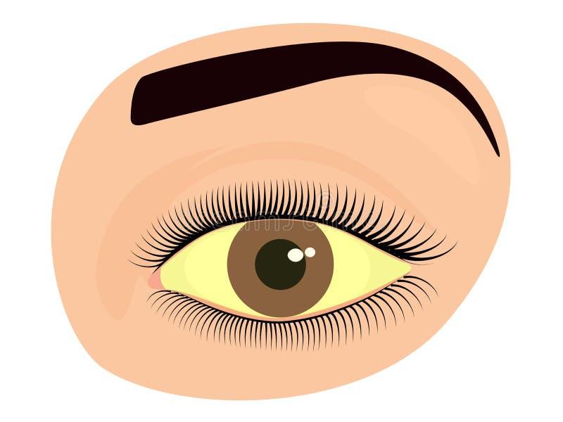 Gezichtsfront_hepatitis en geel oog vector illustratie