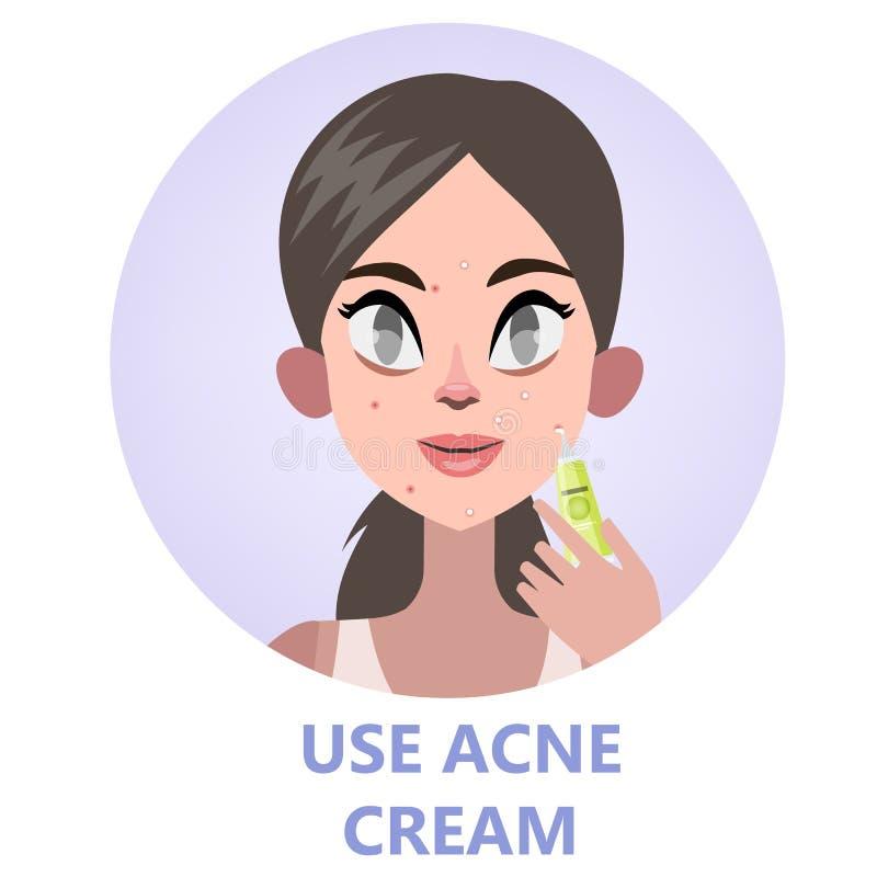 Gezichtszorg met acneroom voor huidschoonheid stock illustratie
